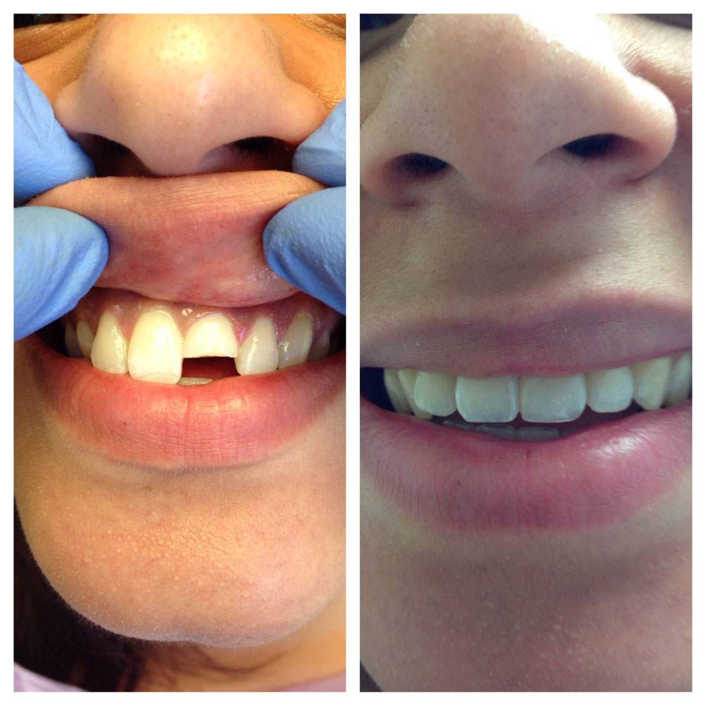 Before Amp After Photos Dentist Brooklyn