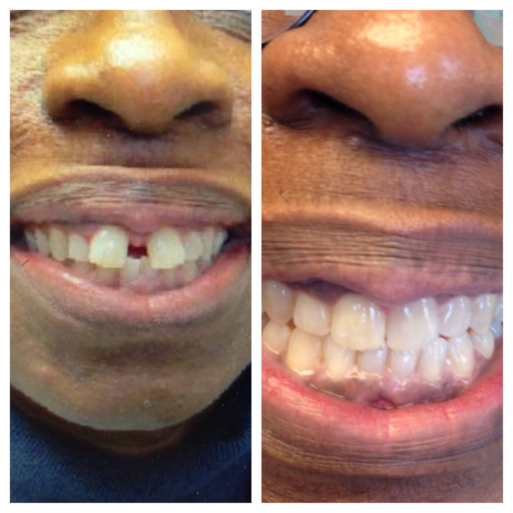 Invisalign-Before-After-Photos