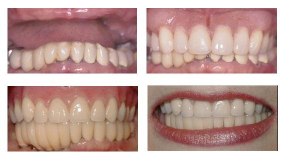 Porcelain-Crowns-Partial-Dentures-Case-6