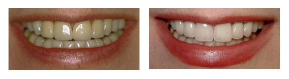 porcelain-crown-caps-before-after-case-4
