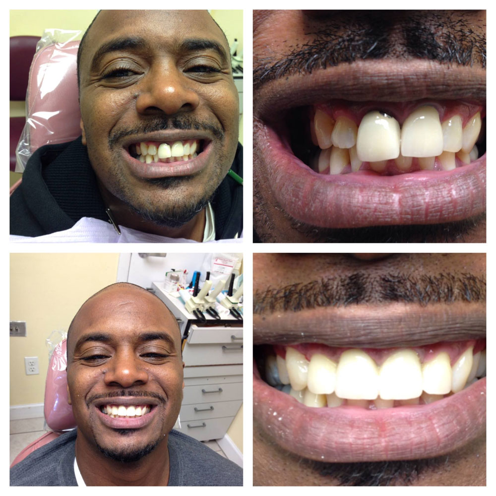 Cosmetic-Dentistry-Makeover-Before-After