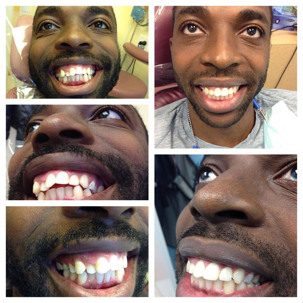Invisalign-Before-After-Photos2