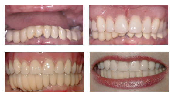 Porcelain-Crowns-Partial-Dentures-Case-6