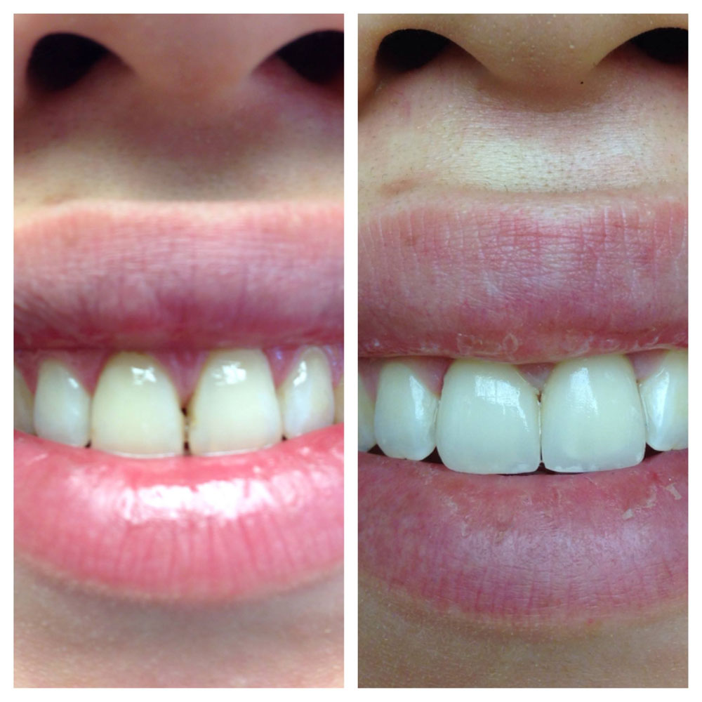 Porcelain-Laminates-Before-After-Photos-2