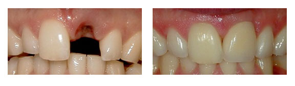 porcelain-crown-caps-dental-impants-before-after-case-5